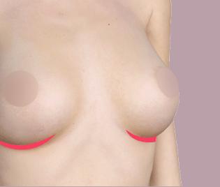 가슴 밑선 절개