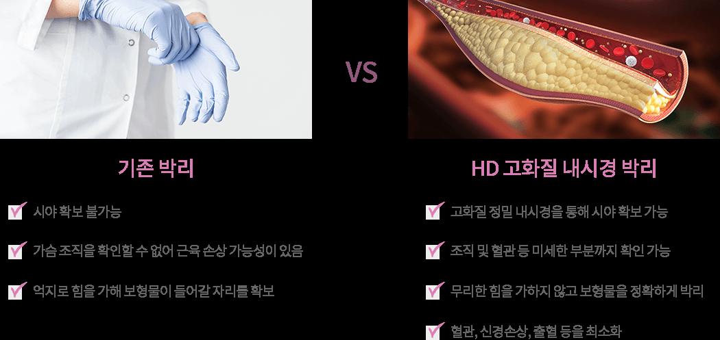 기존박리 vs hd고화질 내시경 박리