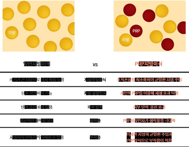 일반지방이식 vs PRP지방이식