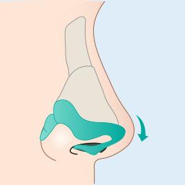 날개연골 연결